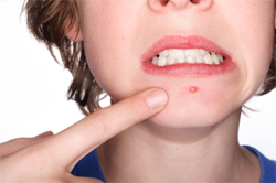 adult acne on chin