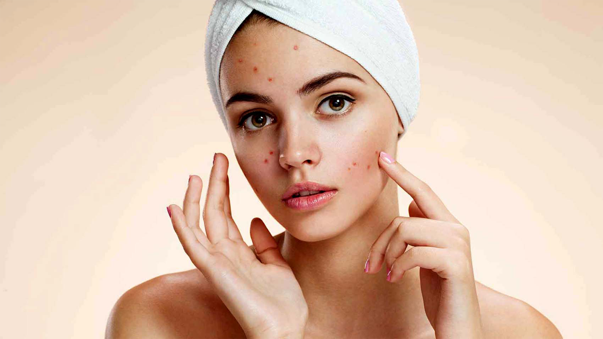 Foods That Cause Acne - Top 10 Interesting Foods