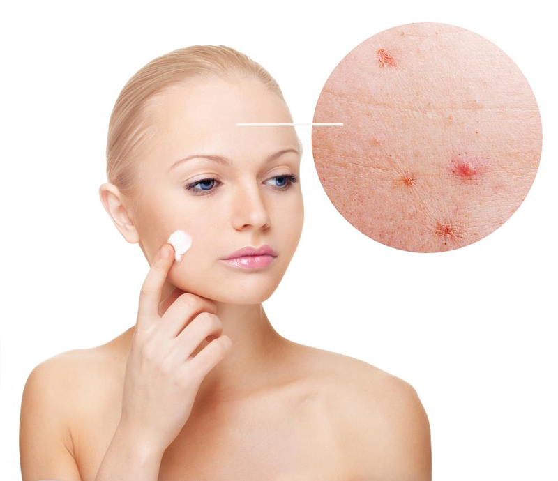 What is the cause of acne?