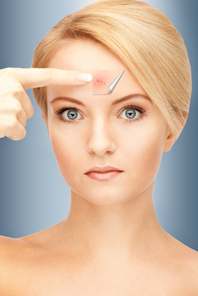 how to get rid of whiteheads on forehead fast