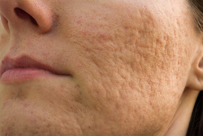 Home Remedies For Little Acne Bumps