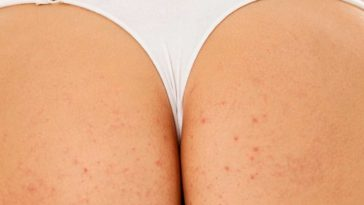 Pimples on Buttocks